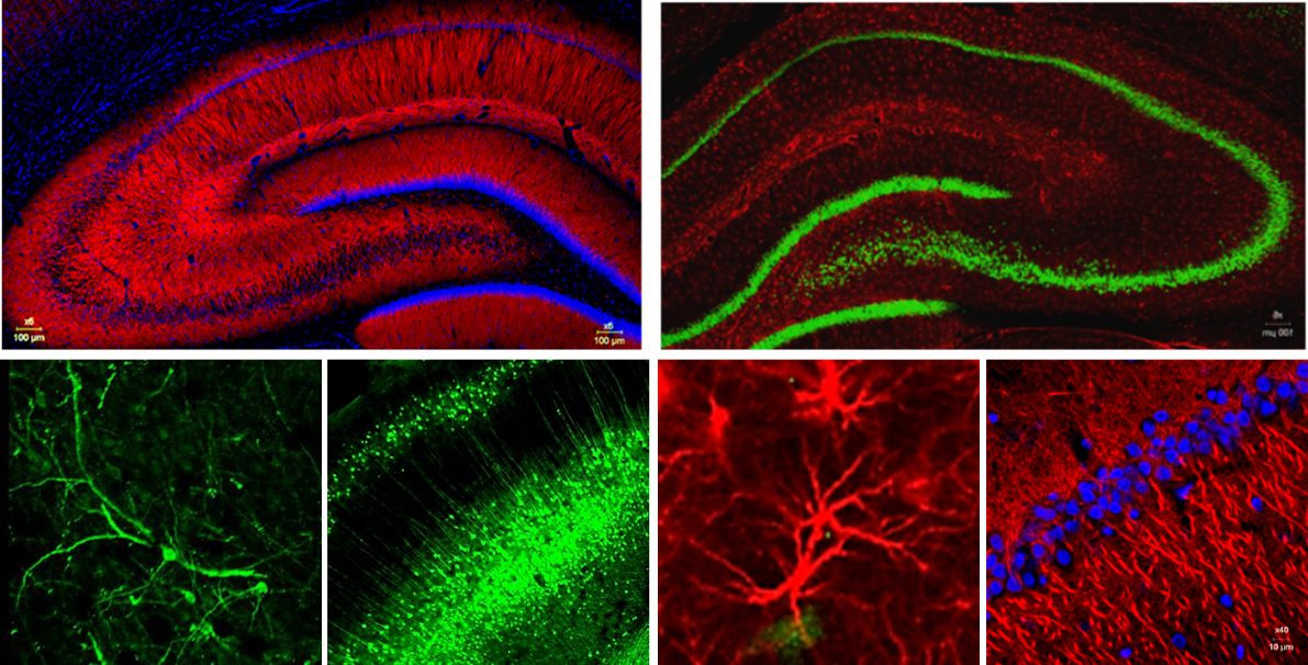 Immunofluorescence labeling of neurons and glial populations in the rat brain